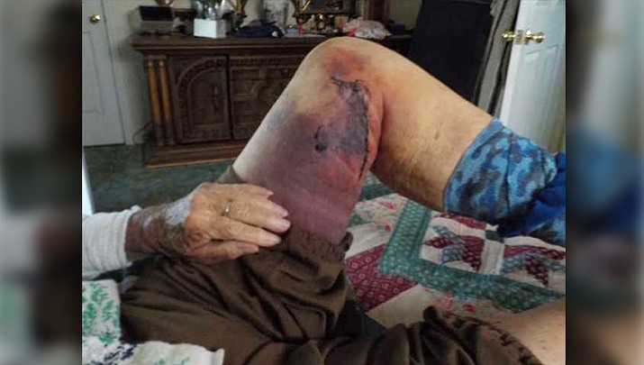 Arizona grandmother covered in bruises after elk attack