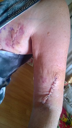 A picture of my mom's arm just three days after surgery.