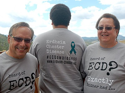 Sue Tone/The Daily Courier<br> The Adler family wears Erdheim-Chester Disease T-shrits to help educate the public about the rare disease afflicting only 240 people worldwide. From left are Rich Adler, son Jeffrey, and Leslie Adler, who has ECD.