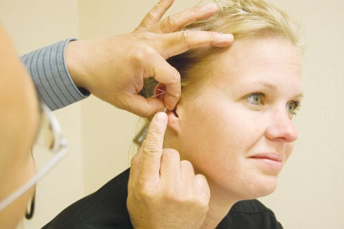 Courtesy<BR><BR> Dr. Stevens Yang, a pain management specialist at KRMC, inserts needles around a patient's ear in a process called auricular therapy, which can be used as a form of detox and is often used to help people quit smoking.