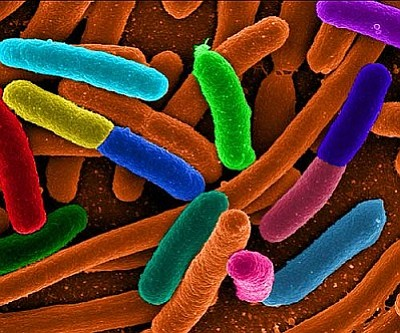 Image: WIKIMEDIA COMMONS<br /><br /><!-- 1upcrlf2 -->Specific types of coliforms include fecal coliform and E. coli (pictured). Although samples of water came up positive for bacteria, follow-up testing came up negative for fecal coliform and E. coli.