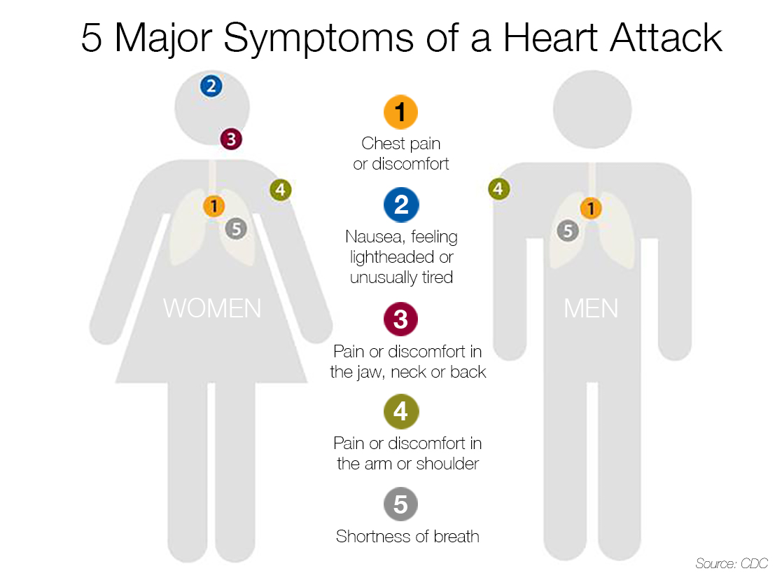 Do you know what to do in case of a heart attack the daily do you know what to do in case of a heart attack the daily courier prescott az ccuart Gallery