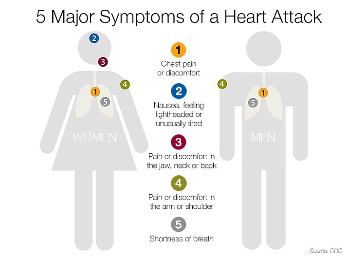 Do you know what to do in case of a heart attack the daily do you know what to do in case of a heart attack ccuart Gallery