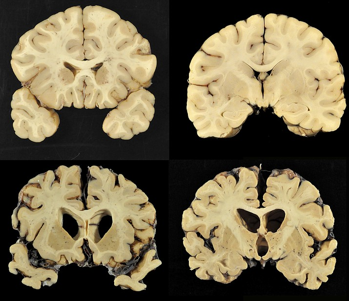 This combination of photos provided by Boston University shows sections from a normal brain, top, and from the brain of former University of Texas football player Greg Ploetz, bottom, in stage IV of chronic traumatic encephalopathy, or CTE. (Dr. Ann McKee/BU via AP)
