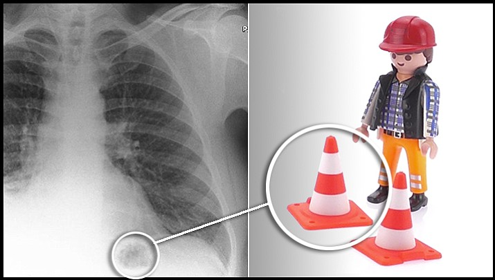 "This ""tumor"" turned out to be a Playmobil toy a 47-year-old man had inhaled as a child. (Biomedical Journal Case Reports)"