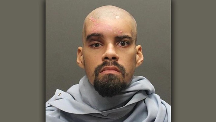 Carjacking suspect shot by Pima County deputies booked into jail