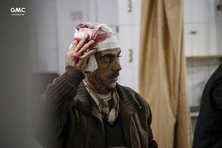 This photo released on Tuesday Feb. 20, 2018 which provided by the Syrian anti-government activist group Ghouta Media Center, which has been authenticated based on its contents and other AP reporting, shows an injured Syrian man who was wounded by the shelling of the Syrian government forces, waits to receive treatment at a makeshift hospital, in Ghouta, suburb of Damascus, Syria. A Syrian monitoring group and paramedics say government shelling and airstrikes on rebel-held suburbs of the capital, Damascus, killed at least 98 people on Monday. (Ghouta Media Center)