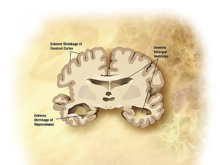 Diagram of a brain in the late stages of Alzheimer's. The next caregiver support group meeting will see a presentation by Jo Adams, who has expertise on Alzheimer's and dementia. (Courtesy)