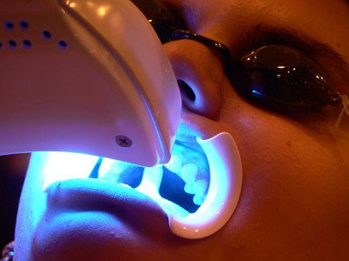 A patient receiving in-office teeth whitening. (Courtesy)