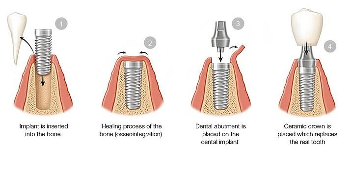 Dental implants. (Courtesy/Illustration)