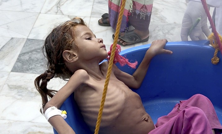 "In this Aug. 25, 2018 file image made from video, a severely malnourished seven-year-old Amal Hussein — whose name means ""hope"" in Arabic, is weighed at the Aslam Health Center in Hajjah, Yemen. On Sunday, Nov. 4, 2018, Geert Cappelaere called the situation a ""living hell"" for all Yemeni children, noting the death of Amal a child whose emaciated body gained attention on the front page of the New York Times last week. In a speech delivered in Amman Cappelaere said, ""There is not one Amal — there are many thousands of Amals."" (AP Photo/Hammadi Issa, File)"