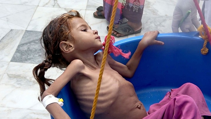 "In this Aug. 25, 2018 file image made from video, a severely malnourished 7-year-old Amal Hussein – whose name means ""hope"" in Arabic – is weighed at the Aslam Health Center in Hajjah, Yemen. On Sunday, Geert Cappelaere called the situation a ""living hell"" for all Yemeni children, noting the death of Amal, a child whose emaciated body gained attention on the front page of the New York Times last week. In a speech delivered in Amman Cappelaere said, ""There is not one Amal – there are many thousands of Amals."" (Hammadi Issa/AP Photo File)"