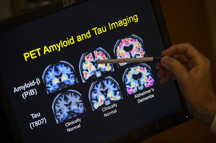 In a May 19, 2015 file photo, R. Scott Turner, Professor of Neurology and Director of the Memory Disorder Center at Georgetown University Hospital, points to PET scan results that are part of a study on Allheimer's disease at Georgetown University Hospital, in Washington.  (AP Photo/Evan Vucci, File)