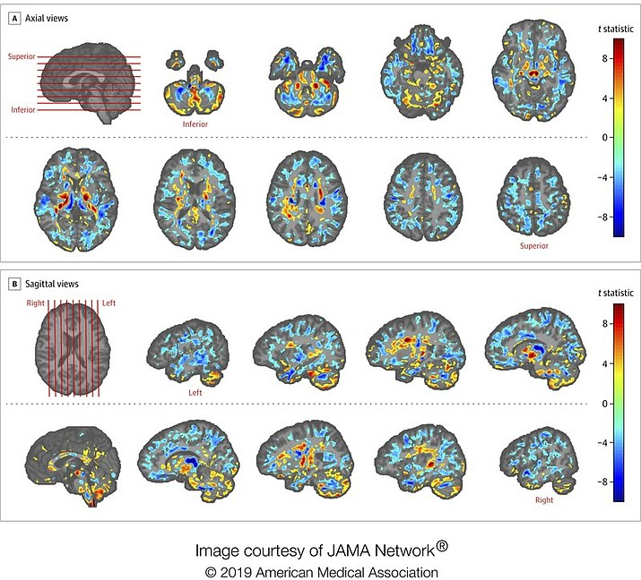 This image provided by the American Medical Association in July 2019 shows the amount of differences between brain scans of patients, U.S. diplomats who developed concussion-like symptoms after working in Cuba, and a control group. Between late 2016 and May 2018, several U.S. and Canadian diplomats in Havana complained of health problems from an unknown cause. One U.S. government count put the number of American personnel affected at 26. (American Medical Association