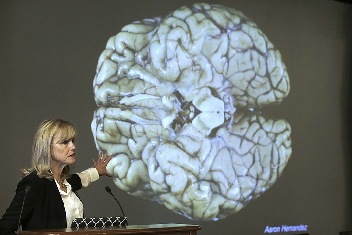 In this Thursday, Nov. 9, 2017 file photo, Ann McKee, director Boston University's center for research into the degenerative brain disease chronic traumatic encephalopathy, or CTE, addresses an audience on the school's campus about the study of NFL football player Aaron Hernandez's brain, projected on a screen behind in Boston. According to a new public service announcement, signing a pre-teen child up for tackle football is like teaching him to smoke. The ad from the Concussion Legacy Foundation encourages parents to choose flag football for children younger than 14. (Steven Senne/AP, file)