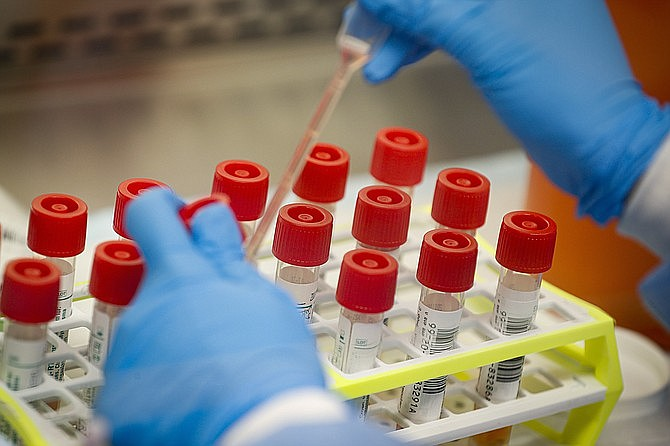 In this Wednesday, March 11, 2020 file photo, a technician prepares COVID-19 coronavirus patient samples for testing at a laboratory in New York's Long Island. (John Minchillo/AP)