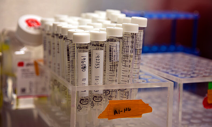 Arizona has its first COVID-19 test that uses saliva. More than 6,000 people have already been tested using the test, ASU scientists say. (Photo courtesy of the ASU Biodesign Institute)