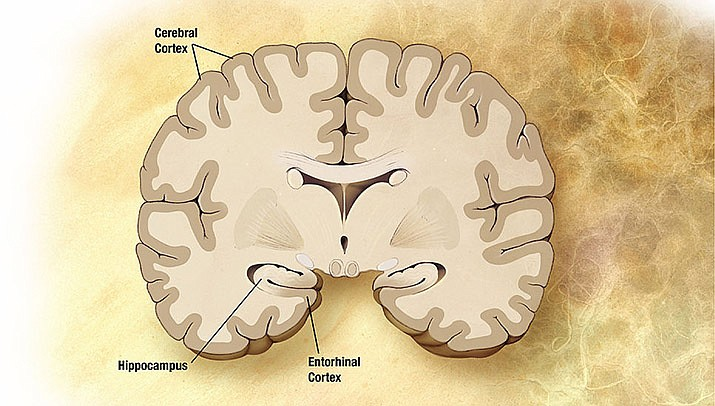 Scientists think they are getting close to developing a blood test to diagnose Alzheimer's disease, a disease of the brain. (Photo by Alzheimer's Disease Education and Referral Center/Public domain)