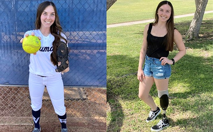 An ATV accident gave Emily White a new perspective on life as she continues to pursue her softball dreams. (Photo/Emily White)