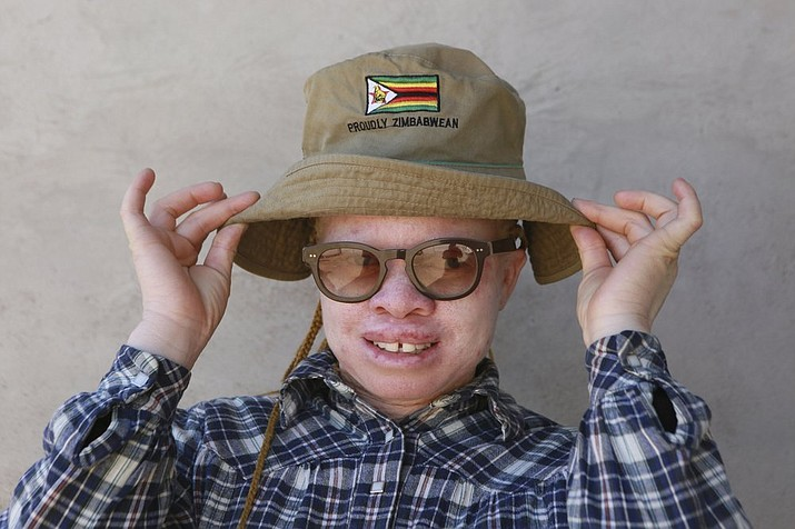 """Yvonne Gumbo poses for a photo outside her family home in Harare, in this Tuesday, June, 9, 2020 photo. Each time Gumbo, who has albinism and her """"black"""" friends get together for a picture, she insists on been in the centre."""" I tell them I make the picture beautiful because I am special,"""" she told the Associated Press at her home in Zimbabwes capital, Harare, recently.(AP Photo/Tsvangirayi Mukwazhi)"""